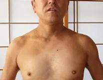 アトピー性皮膚炎改善